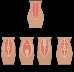 Diastasis Recti (abdominal separation)